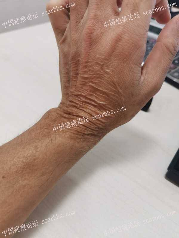手部20年的烫伤疤痕如何治疗