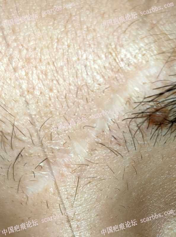 眉心的疤痕,小时候摔的做过激光缝合,寻求各位建议