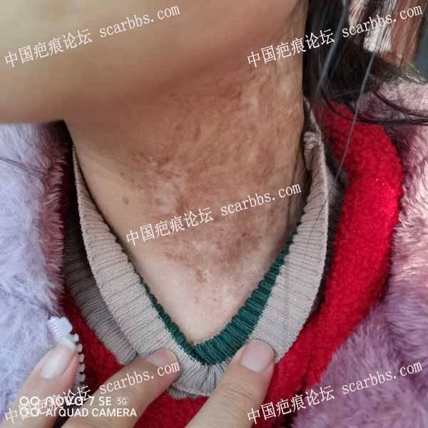 颈部疤痕帮忙看看有什么好的方法治疗