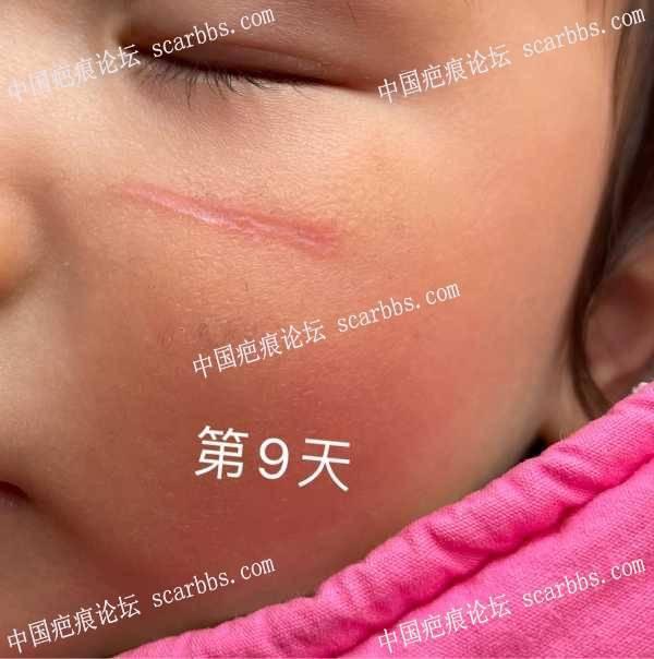 宝宝脸上指甲划伤,明显凹痕(持续更新) 脸上划痕
