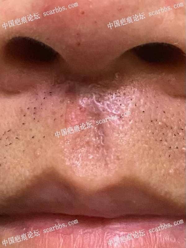 求人中疤痕修复方法