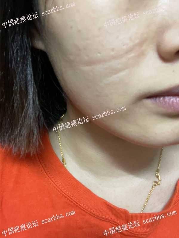 有人知道脸上大的凹陷疤痕怎么去除吗?