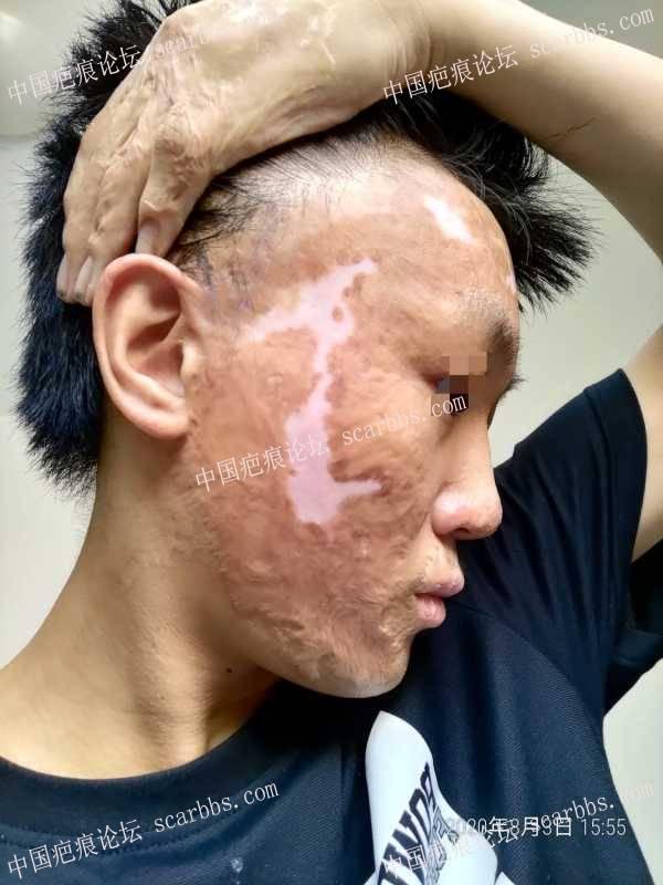 面部烧伤八年了,能做扩张吗