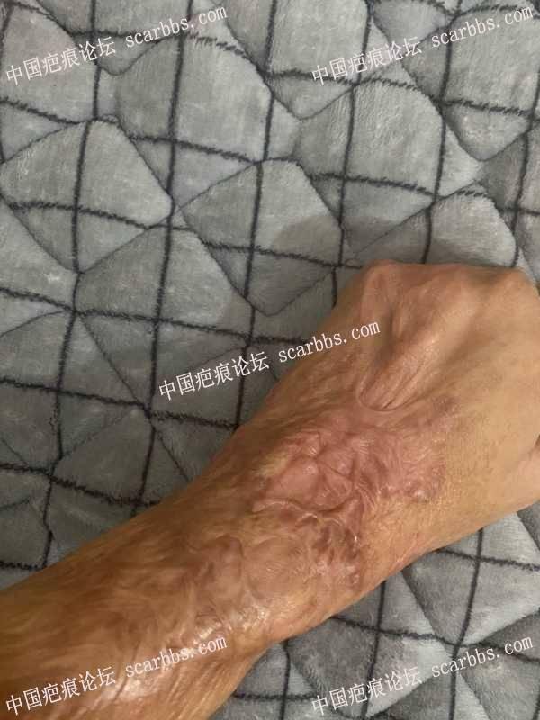 手臂十多年的烫伤伤疤该怎么有效治疗啊?