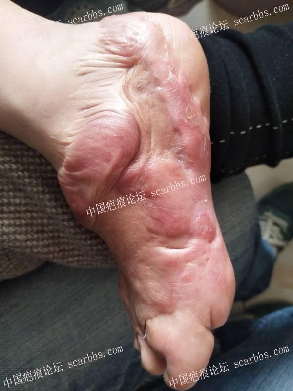 疤痕体质,孩子现在4岁多,请问如何治疗?