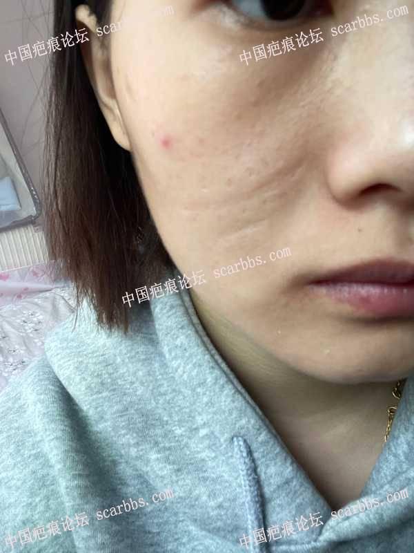 面部线性疤痕二十多年,能否手术去掉?