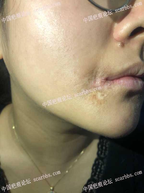 小时候的嘴角疤痕