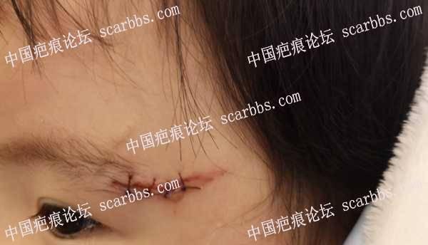 3.5号下午磕伤左边眼角,开始护理
