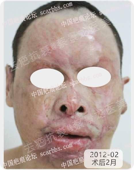 面部烧伤后复杂疑难疤痕治疗