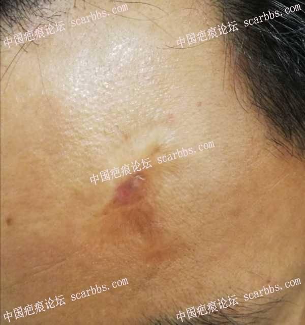 面部凹陷烫伤以及额头疤痕,求治疗方案
