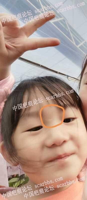 4岁女宝鼻梁处摔伤缝3针,最后留下一个凹陷的伤口,请问现在还能修复吗?