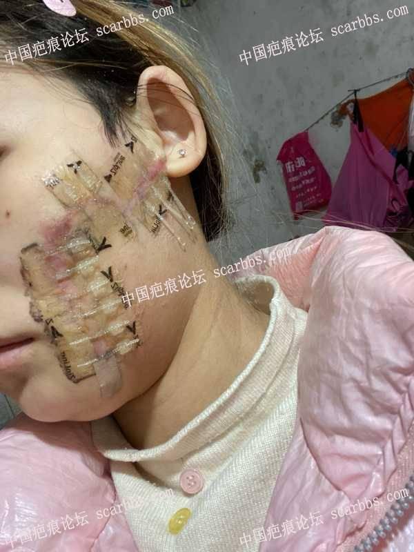扩张器二期后脸红疤痕就红