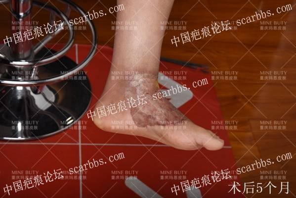 足背部30多年疤痕疙瘩/瘢痕疙瘩治疗记