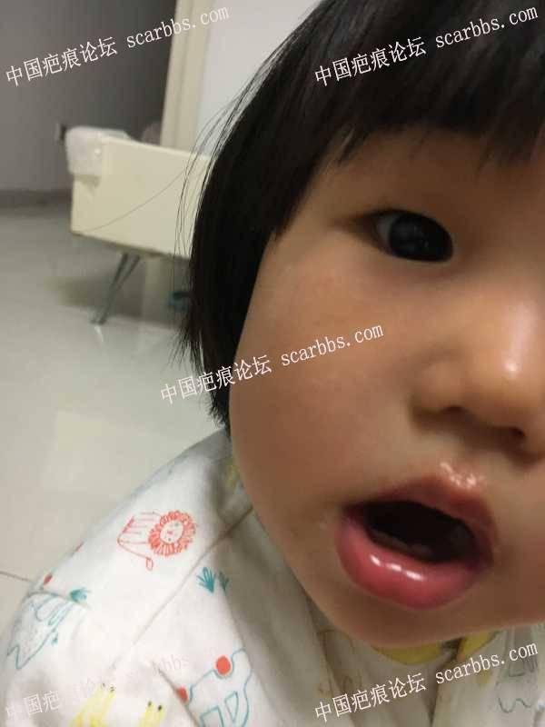 18个月宝宝脸被划伤