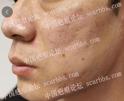 凹陷痘疤治疗方法是什么