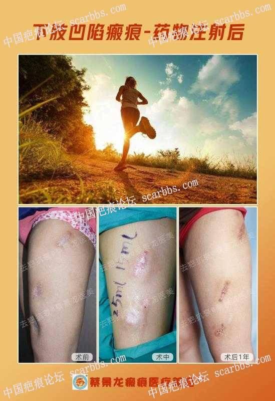 药物注射造成的凹陷疤痕自体脂肪注射移植治疗效果
