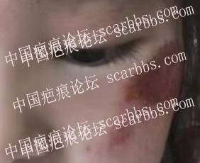 宝贝脸颊擦伤留下难看印迹,色沉疤痕