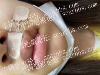 嘴角疤痕手术分享