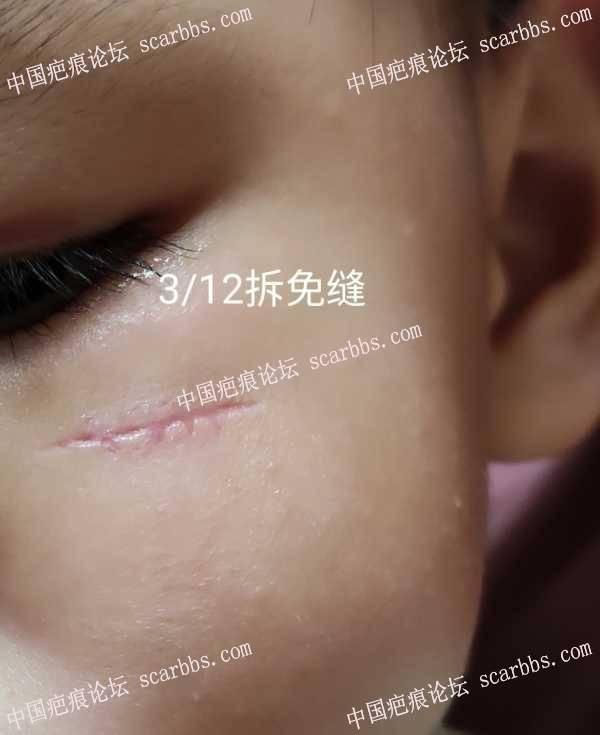 开贴记录脸颊缝合4针护理过程,恢复好的话给有爱的爸爸妈妈参考!不定时更新…