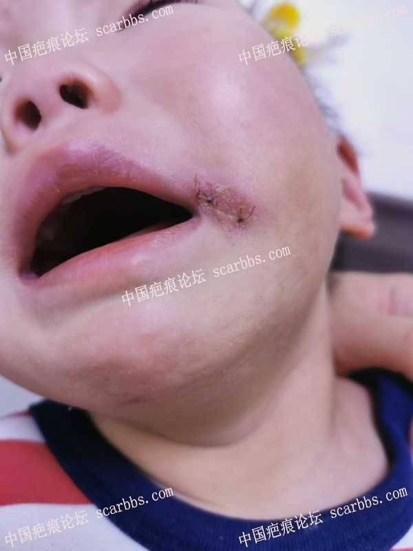 一岁四个月宝宝嘴角玻璃扎伤