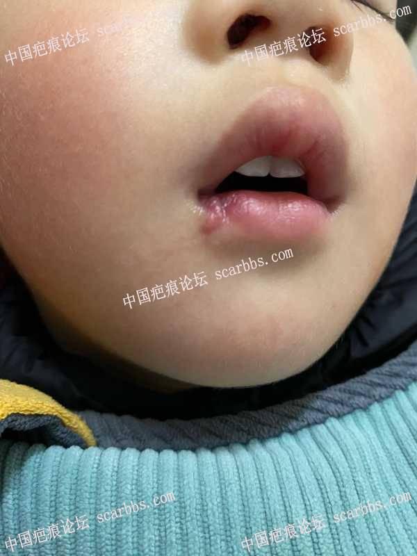 嘴唇磕伤疤痕