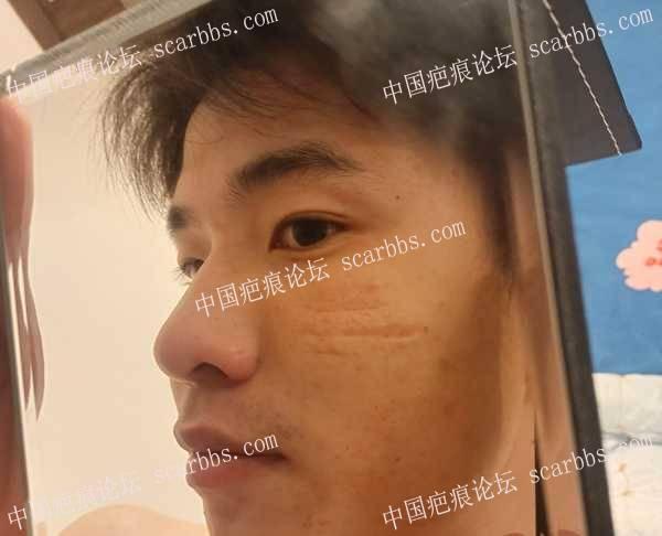2岁被狗抓伤脸,多年来的心结,成了凹陷疤痕