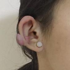 你了解耳廓疤痕疙瘩吗?