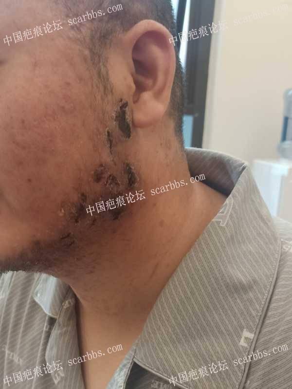 简单分享下我的疤痕疙瘩治疗过程