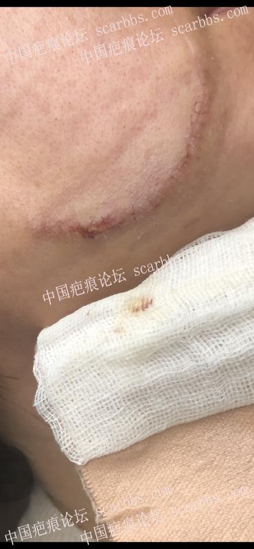 脸部疤痕术后每月定期更新(计划持续两年,请大家监督哈)