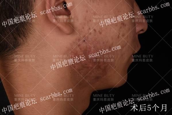 17岁少年痤疮引起的疤痕疙瘩治疗纪