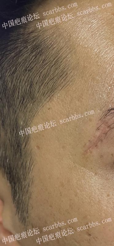 切缝拆线后一个月针孔发黑怎么办?