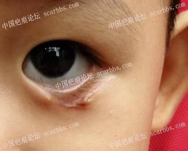 霰粒肿自愈眼睑缺损 瘢痕收缩