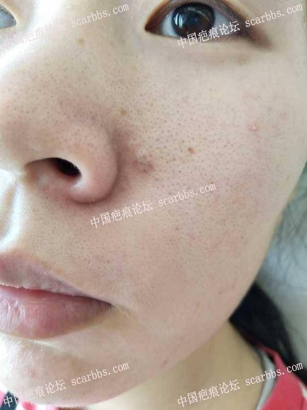 上海九院整复外科刘伟和武晓莉谁更擅长脸上精细化缝合?