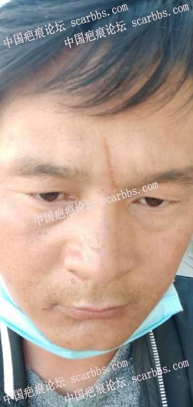鼻梁上疤痕,在杨东运老师这里做的切缝