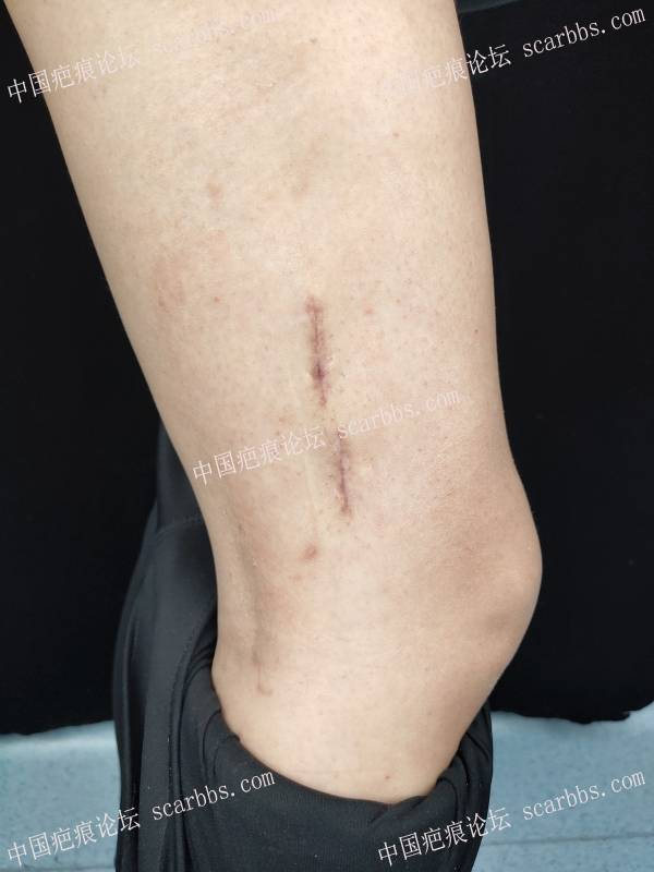 """骨科手术后留下的""""蜈蚣疤""""进行的手术切缝"""