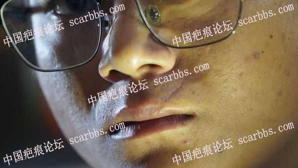 上嘴唇的凹陷痕迹,还有的救吗?