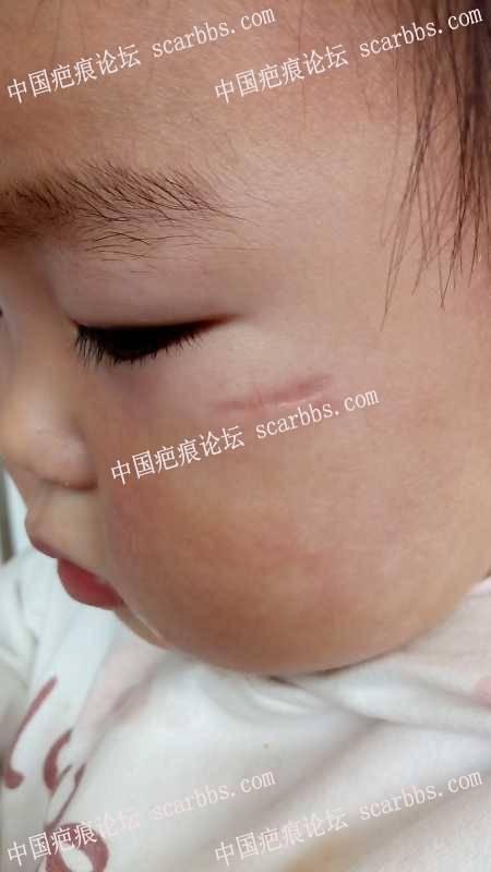 儿童面部瞌伤,求护理方法