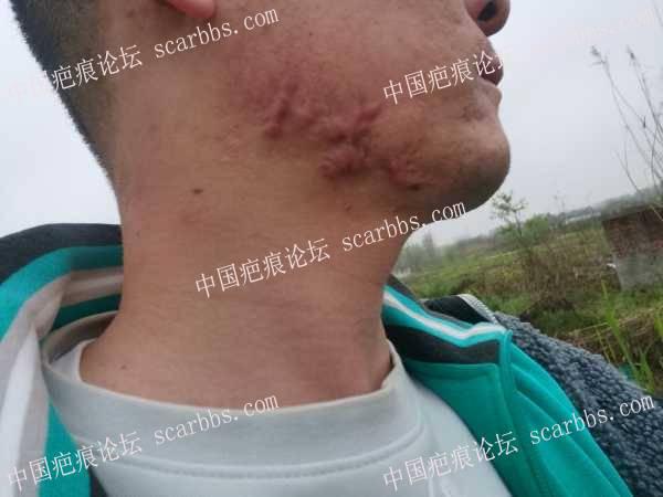 腮部的疤痕疙瘩要如何治疗,求良医