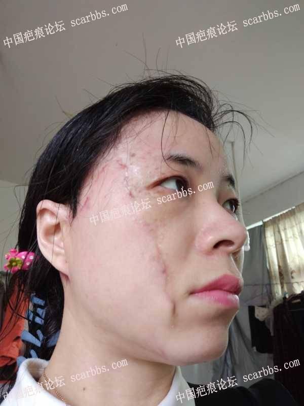 婴儿血管瘤留下疤痕,二期手术后三个月效果