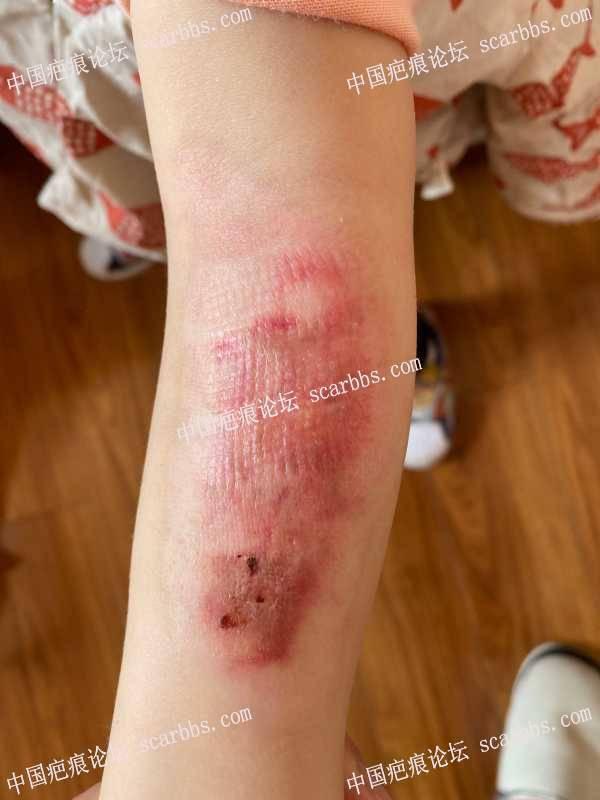 宝宝手臂烫伤持续更新