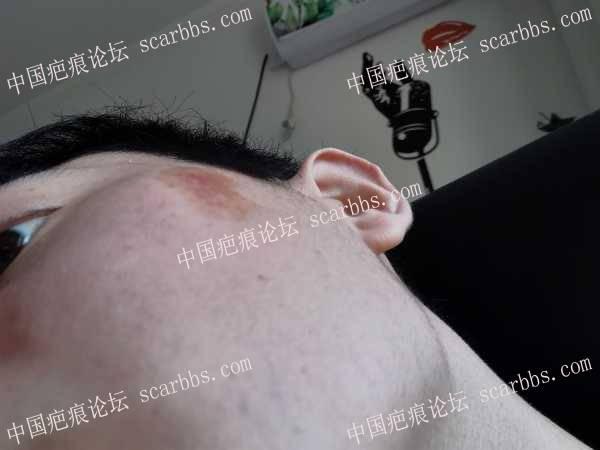 20多年面部烧伤疤痕还能修复好吗