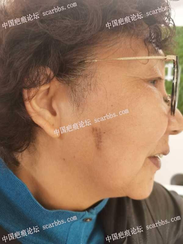 面部疤痕疙瘩,切缝术后第一次激光!