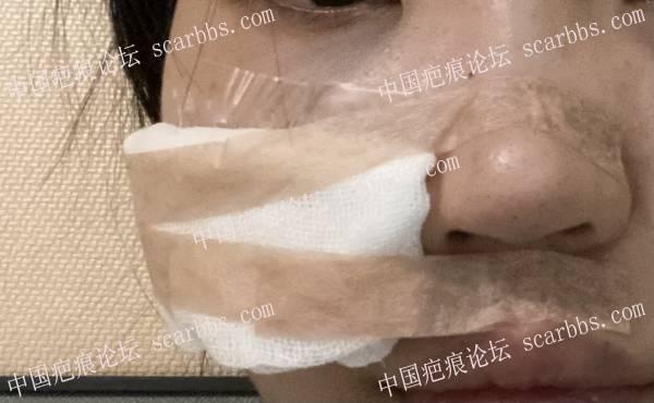 面部的凹陷针眼疤痕切缝记录