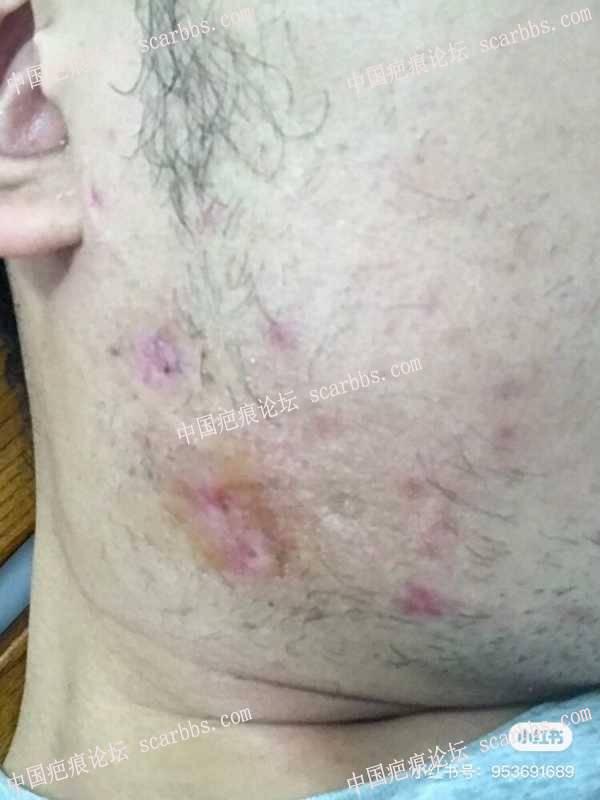 6年的疤痕疙瘩求医之路