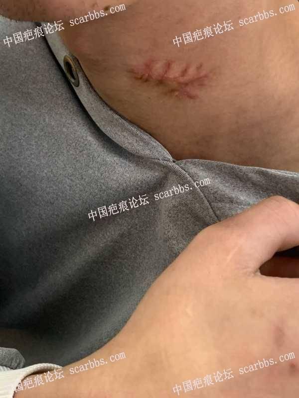 像这种脖子下面的疤痕应该去除多少钱啊