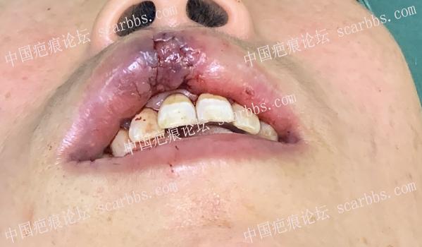 唇部再造术