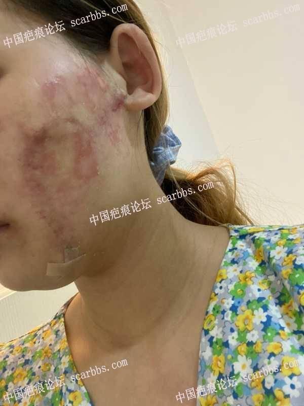面部疤痕术后贴减张器贴过敏了