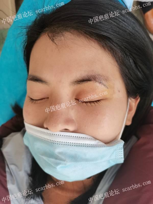 小姐姐眉梢部黑痣,术后2个月复查