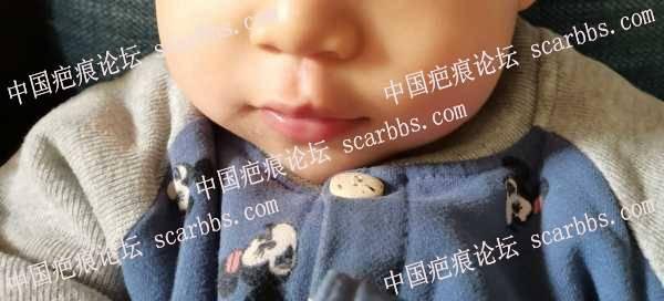 宝宝人中贯通伤