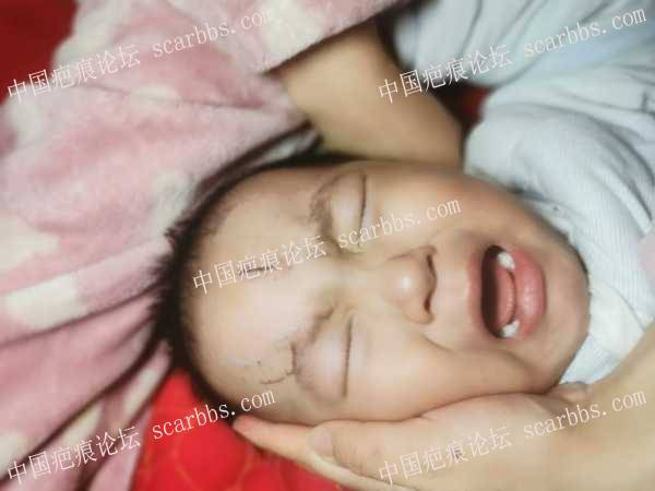 20月宝宝额头缝针,寝食难安,如何护理才能疤痕最轻